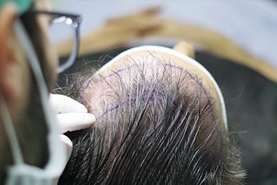 traşsız saç ekimi planlaması