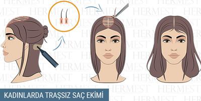 kadınlarda traşsız saç ekimi