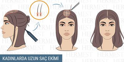 kadınlarda uzun saç ekimi
